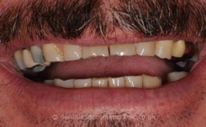 Before - Wiltondental