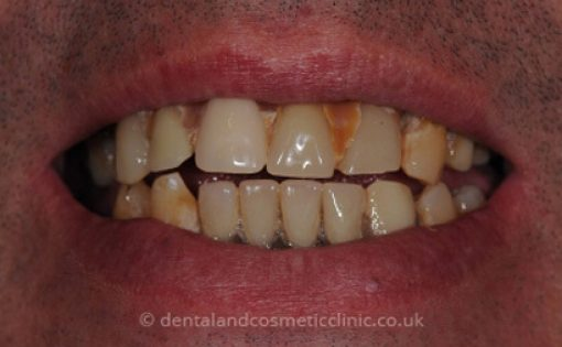 Before - Cosmeticclinic