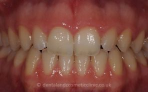 After - Wiltondental